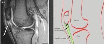 image IRM tendinite rotulienne