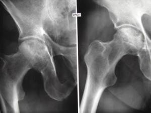nécrose de hanche