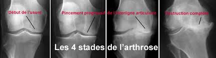 stades radiologiques de la gonarthrose